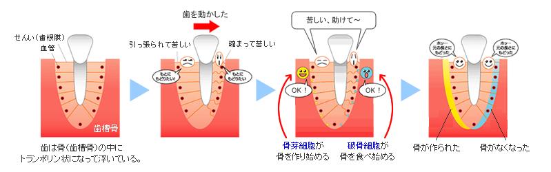 歯が動く仕組み(矯正歯科の豆知識) - 東大阪市の歯列矯正 大阪アート矯正歯科